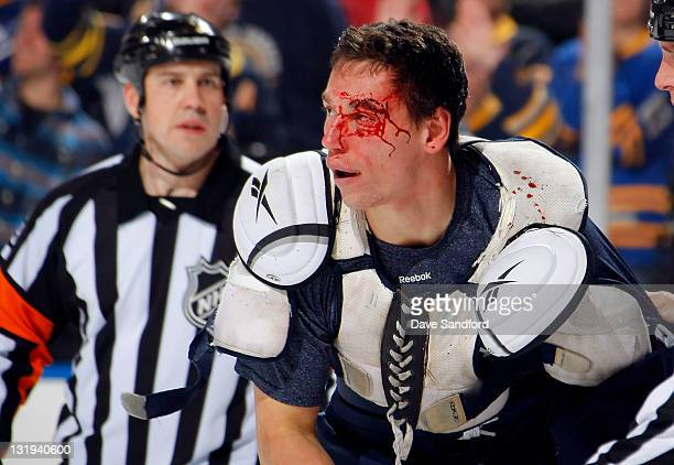Cody McCormick of the Buffalo Sabres skates to the bench bleeding after being cut in a fight with Tanner Glass of the Winnipeg Jets during their NHL...