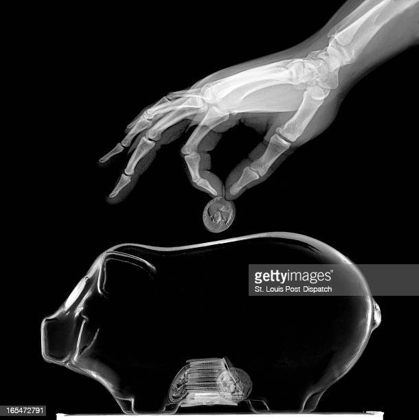 6 col x 117 in / 295x297 mm / 1004x1011 pixels Kevin Manning illustration of an Xray hand placing money into a piggy bank