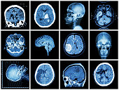 Collection of brain disease ( CT scan and MRI of brain : show cerebral infarct , intracerebral hemorrhage , brain tumor , basal ganglia hemorrhage ( status post craniotomy ) ) ( health care concept )