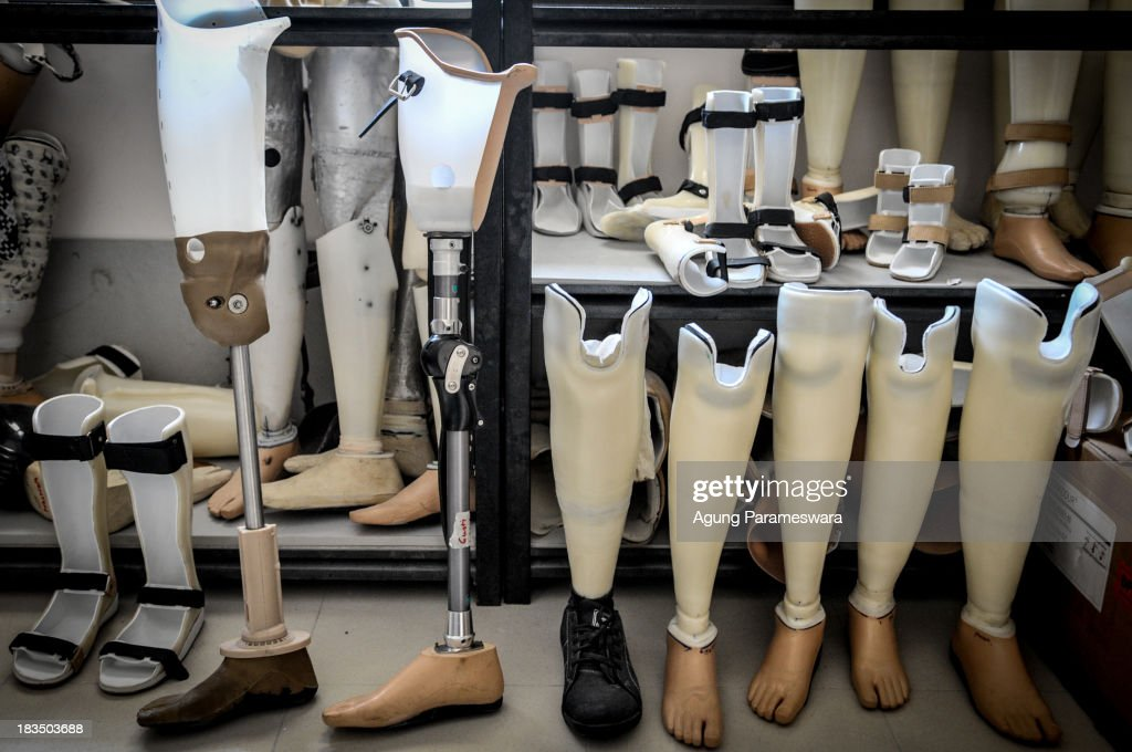A collection of prosthetic limbs prosthetic legs and AFO at PUSPADI Bali on October 4 2013 in Denpasar Bali Indonesia PUSPADI is an organisation in...