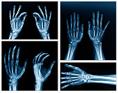 collection hand x-ray high quality picture