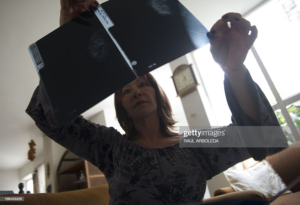 Colombian Luz Maria Cordoba, 58, subject to PIP breasts implants shows an echosonogram during an interview with AFP in Medellin, Antioquia department, Colombia on April 5, 2013. Some 15,000 Colombian women were subject to defective PIP (Poly Implant Prothese) breast implants, from whom 4000 are in Medellin, Colombia's second city. More than 400,000 women around the world are thought to have received implants made by PIP. AFP PHOTO / Raul ARBOLEDA