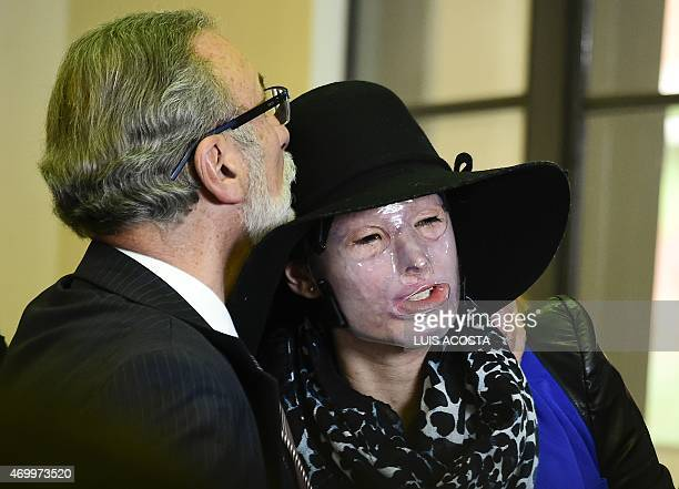 Colombian victim of assault using acid Natalia Ponce De Leon is kieesed by her father during the launching of her book ' Rebirth of Natalia Ponce de...