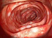 The ulcerative colitis is an inflammatory disease of the human bowel.
