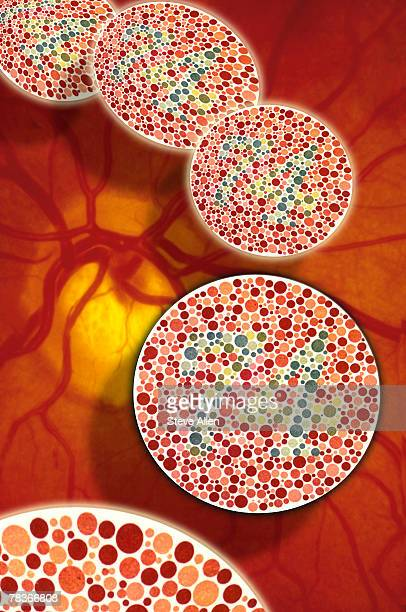 Color blindness in eye