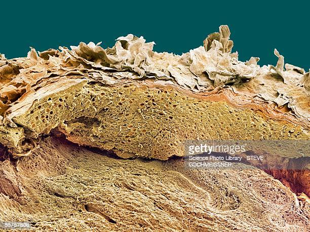 Colored scanning electron micrograph of section through healthy skin