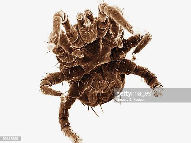 Coloured SEM of ectoparasitic mite collected from bat