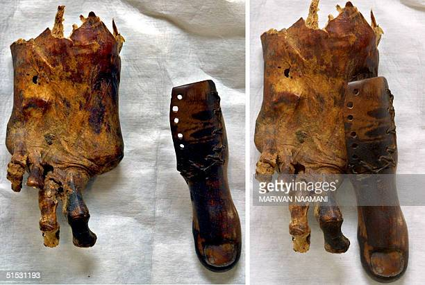 A combo picture of two images taken 13 August 2002 at Cairo Museum shows a foot of a mummy missing its big toe and beside it a prosthetic toe of...