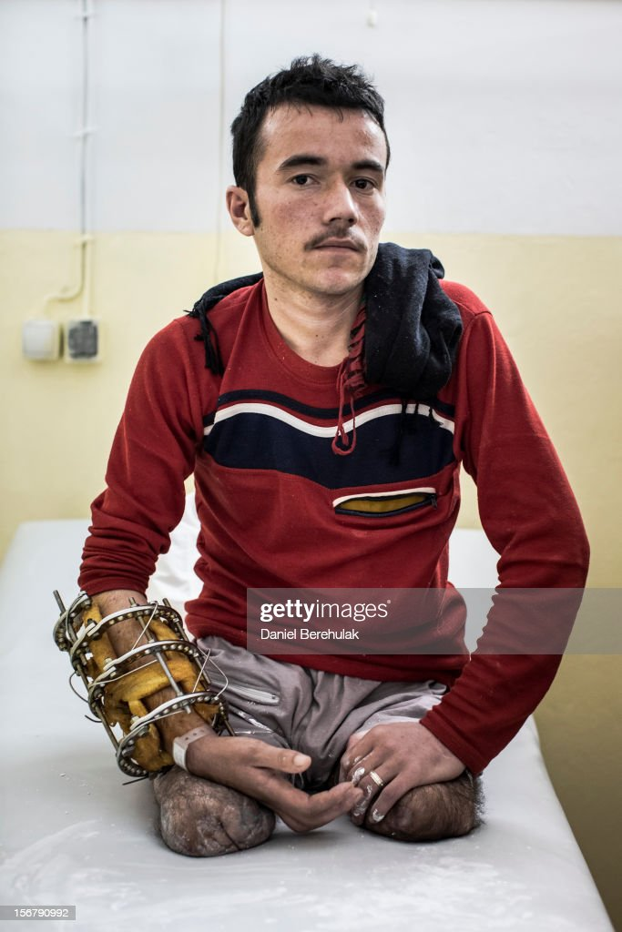 ANA commando, Khairuddin Sultan, 21, who joined the army 18 months ago, poses for a portrait after having a mould done for his prosthetic legs at the International Committee of the Red Cross (ICRC) orthopedic centre on November 19, 2012 in Kabul, Afghanistan. Khairuddin, a double amputee, lost his legs when an IED exploded during a joint operation against the Taliban with U.S. special forces. The IED exploded while using a mine detector, sending shrapnell in to his outstretched hand and blowing up his legs. 'If they want me, i would like to go back, but if they (the government) would give me a salary i would like to stay home' said the soldier. The ICRC rehabilitation centre works to educate and rehabilitate land-mine victims, and those with limb related deformities, back into society and employment offering micro-credit financing, home schooling and vocational training to patients. The clinic itself is unique in that all of the workers are handicapped. The ICRC centre in Kabul has registered over 57,000 patients and 114,000 countrywide in all of their centres since its inception 25 years ago.