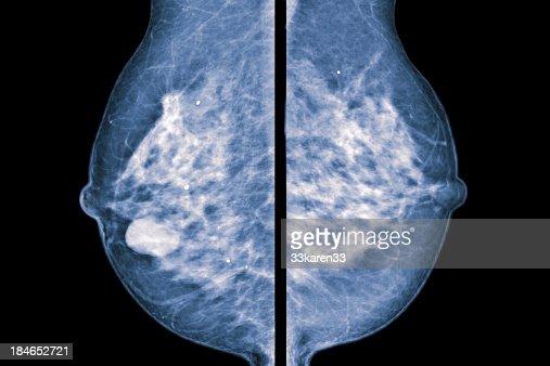 comparative mammogram