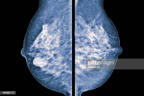 comparative mammogram