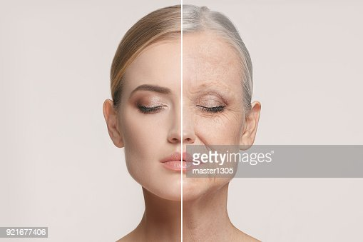 Comparison. Portrait of beautiful woman with problem and clean skin, aging and youth concept, beauty treatment : Foto stock