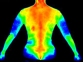 Thermographic photo image of the back of the upper body of a woman with the photo showing different temperature in a range of colors from blue showing cold to red showing hot which can indicate joint