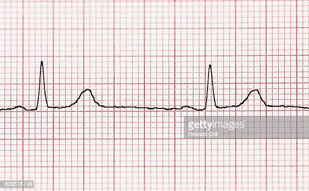 EKG Complexes