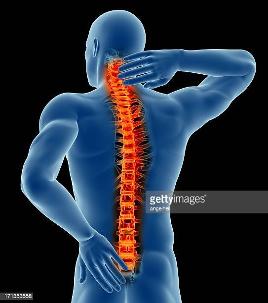 Computer graphic of a man showing back pain in the spine
