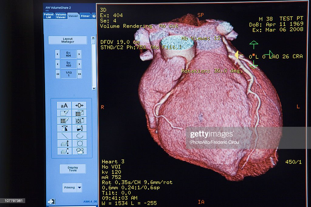 Computer monitor displaying CAT scan image of heart : Stock Photo