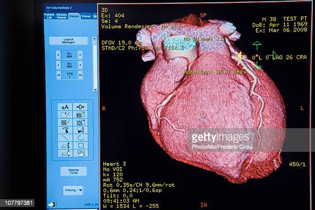 Computer monitor displaying CAT scan image of heart