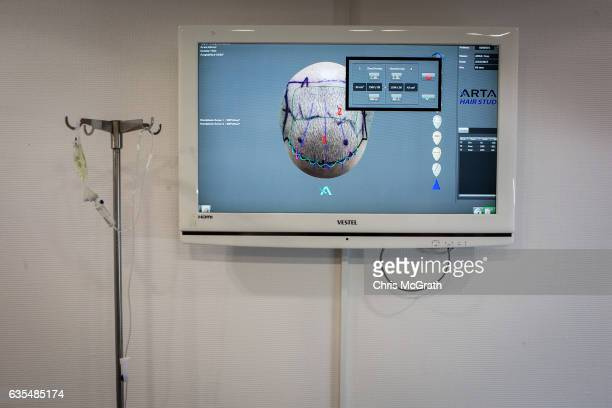 A computer screen shows a photograph projecting the results of a patients robotic hair transplant procedure at the luxury Esteworld Clinic on...