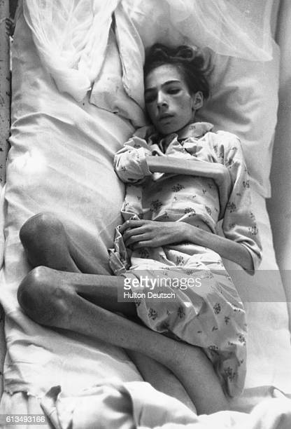 Concentration camp victim Vera Berger aged 13 suffering from starvation typhus and tuberculosis lies in a hospital bed at Ravensburgh Camp 1945