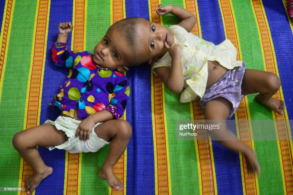 Conjoined Baby Girls at Dhaka Medical Collage Hospital
