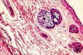Connective tissue located at human outer ear, light micrograph. Hematoxylin and eosin stain