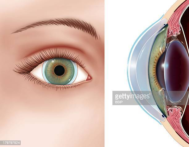 Contact Lens Front View And An Eye In Cutaway View Of The Position And Dimension Of Soft Lenses