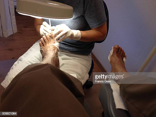 Copenhagen/Denmark/ 15th September 2015_ Podiatrist working on feet in Podiatrist clinic