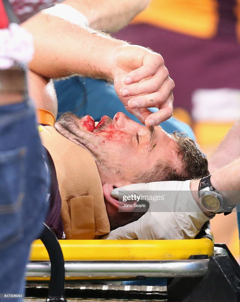 Corey Oates of the Broncos is taken off the ground after a collison during the NRL Semi Final match between the Brisbane Broncos and the Penrith Panthers at Suncorp Stadium on September 15, 2017 in Brisbane, Australia.