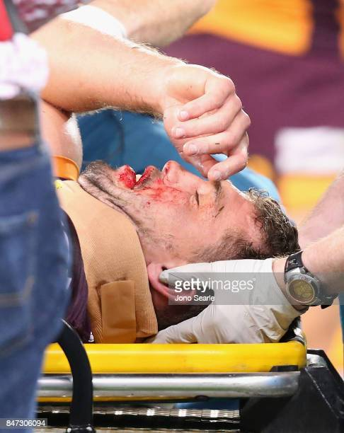 Corey Oates of the Broncos is taken off the ground after a collison during the NRL Semi Final match between the Brisbane Broncos and the Penrith...