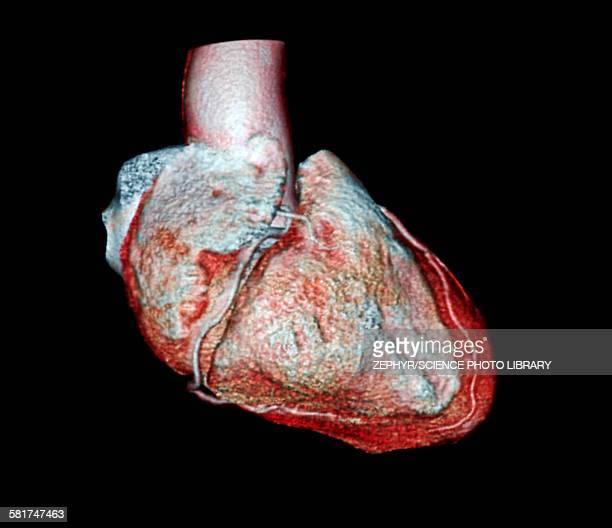 Coronary arteries, CT scan