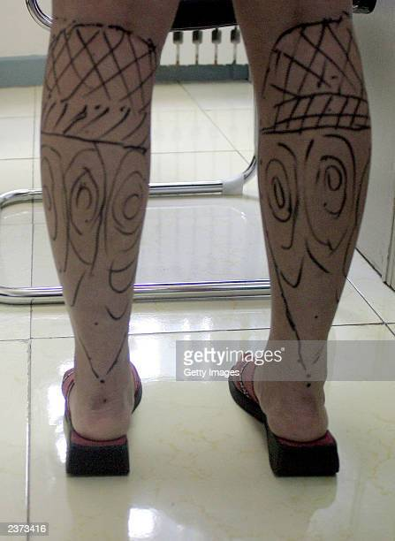 Cosmetic surgical marks are seen on the legs of Lucy Hao ahead of a liposuction operation in a hospital on August 6 2003 in Beijing China Hao a...