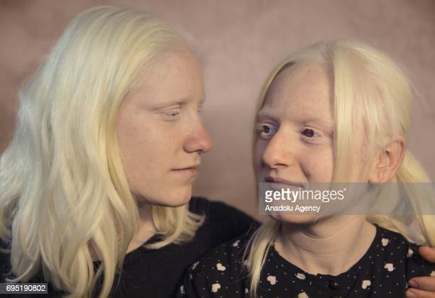 Cousins with albinism Kubra and Busra Adin pose for a photo in Mardin province of Turkey on December 21 2016 Albinos a rare group of genetic...