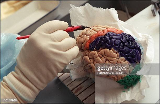 Creutzfeldt Jakob The pathological anatomy of Pr Hauw at Paris' Hopital de la PitieSalpetriere in France on February 01 2001 Study of a brain to...