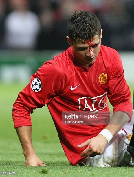 Cristiano Ronaldo of Manchester United leaves the pitch with a head injury during the UEFA Champions League match between Manchester United and AS...