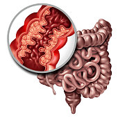Crohn's disease or crohn illness medical concept as a close up of a human intestine with inflammation symptoms causing obstruction as a 3D illustration.