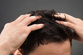 Cropped image of man suffering from dandruff against gray background