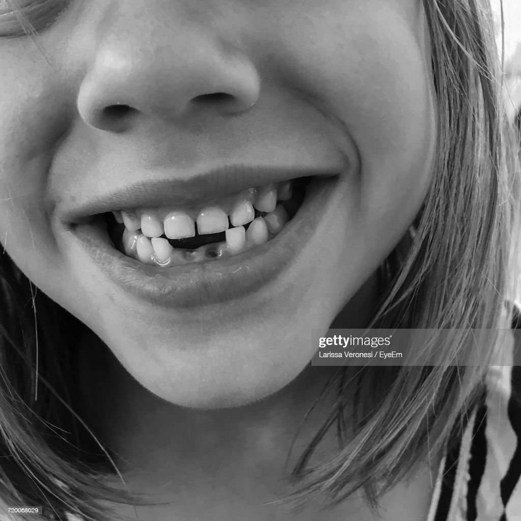Cropped Image Of Smiling Girl With Gap Toothed : Stock-Foto