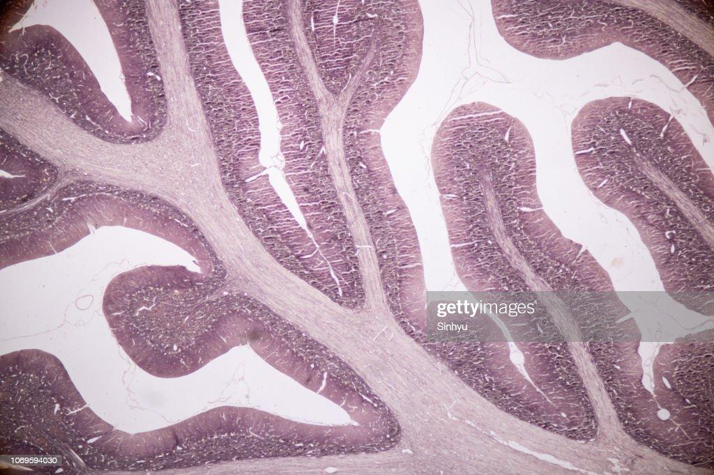 Querschnitt des menschlichen kleinhirn und nerven unter dem
