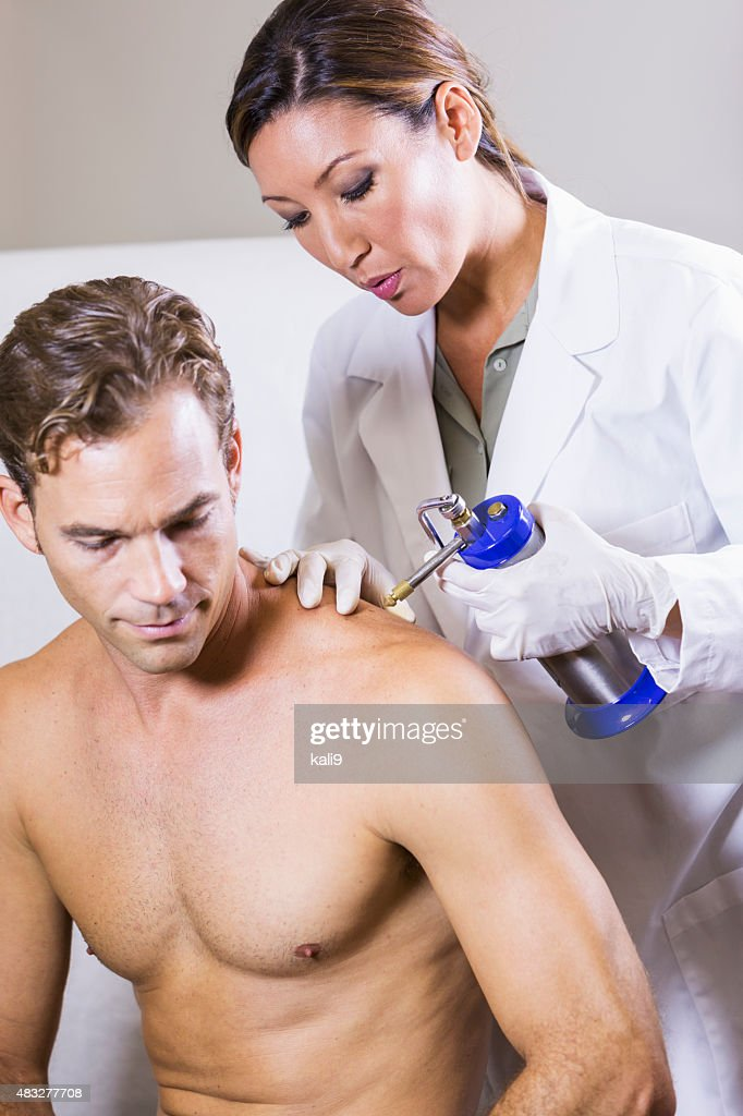 Cryotherapy treatment at dermatologist's office