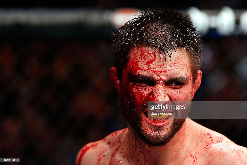 A cut and bloodied <a gi-track='captionPersonalityLinkClicked' href=/galleries/search?phrase=Carlos+Condit&family=editorial&specificpeople=7049007 ng-click='$event.stopPropagation()'>Carlos Condit</a> reacts after a round against <a gi-track='captionPersonalityLinkClicked' href=/galleries/search?phrase=Georges+St-Pierre&family=editorial&specificpeople=4864241 ng-click='$event.stopPropagation()'>Georges St-Pierre</a> in their welterweight title bout during UFC 154 on November 17, 2012 at the Bell Centre in Montreal, Canada.