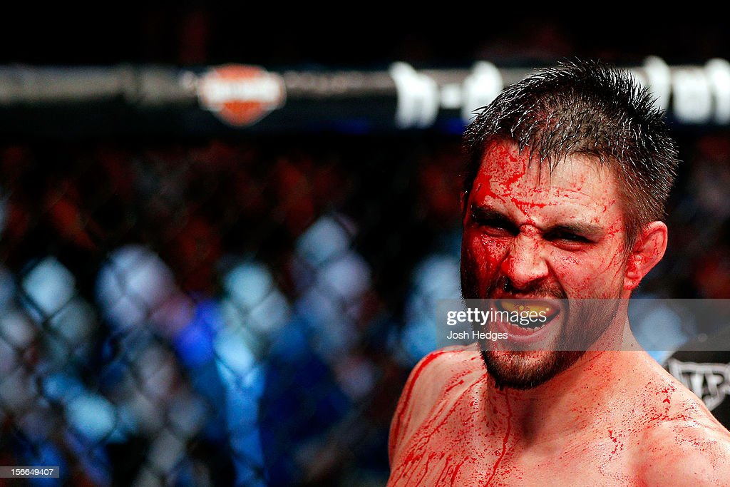 A cut and bloodied Carlos Condit reacts after a round against Georges St-Pierre in their welterweight title bout during UFC 154 on November 17, 2012 at the Bell Centre in Montreal, Canada.