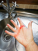 Close up of a cut hand with bleeding and tiny shards of glass about to be cleaned by a running tap - domestic accident concept