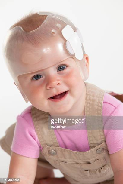 A cute baby wearing a transparent helmet