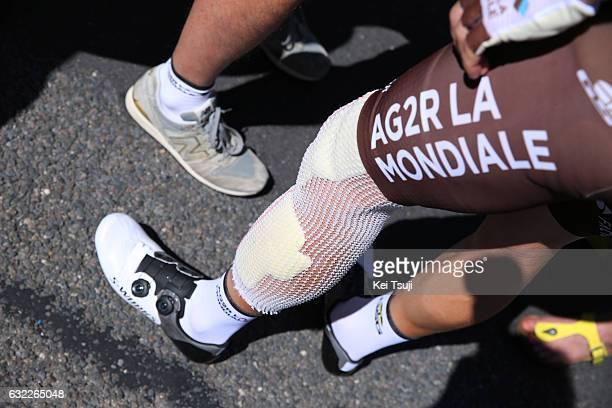 19th Santos Tour Down Under 2017/ Stage 5 Men Start / Jan BAKELANTS / illustration / Leg / Injury/ McLaren Vale Willunga Hill 382m / BikeExchange...