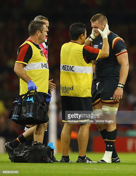 Dan Lydiate of Wales is given treatment during the 2015 Rugby World Cup Pool A match between Wales and Fiji at the Millennium Stadium on October 1...