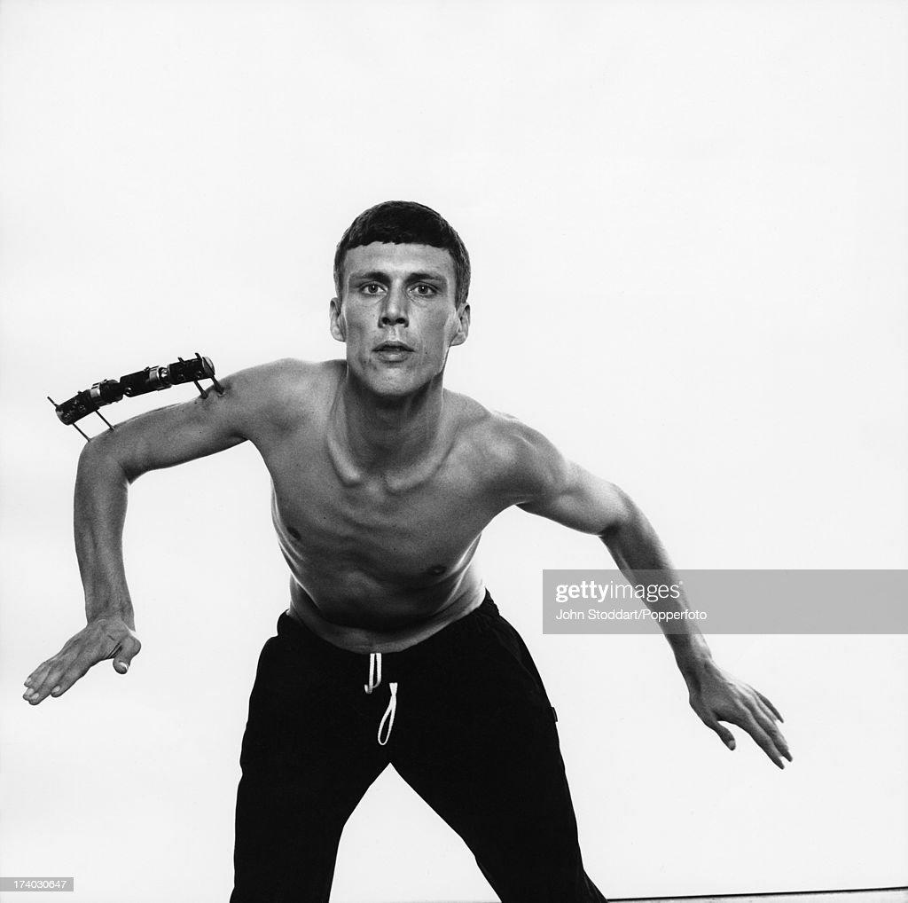 Dancer Bez of the Happy Mondays wearing an external metal brace on his broken arm, circa 1992.