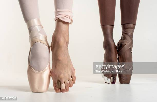 Dancing takes a huge toll on the feet and elite and professional dancers have dedication and grit that is above and beyond the average person Sona...