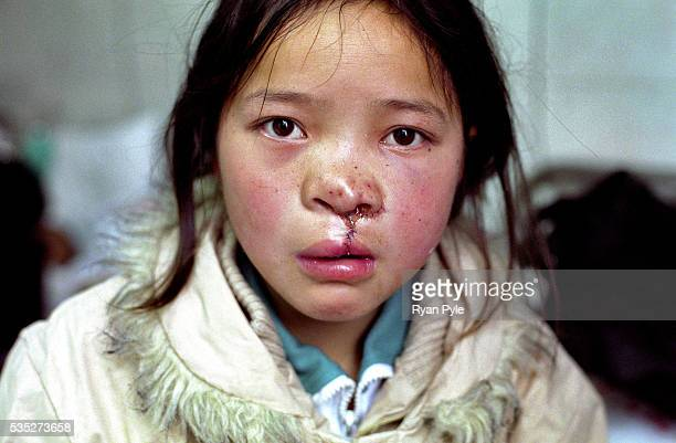 Dandan Men 11 years old after surgery She has travelled over 100 km to receive a free Cleft Lip and Cleft Palate surgery today at Suqian People's...