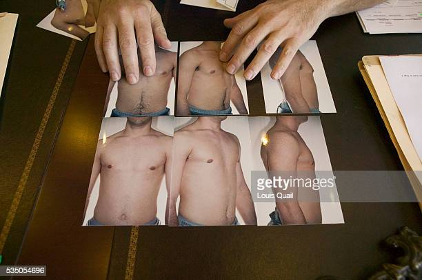 Daniel Johnson had gynecomastia surgery in 2004 aged 17 in Long Island Here his surgeon Dr Gold shows before and after photographs of Daniel His...