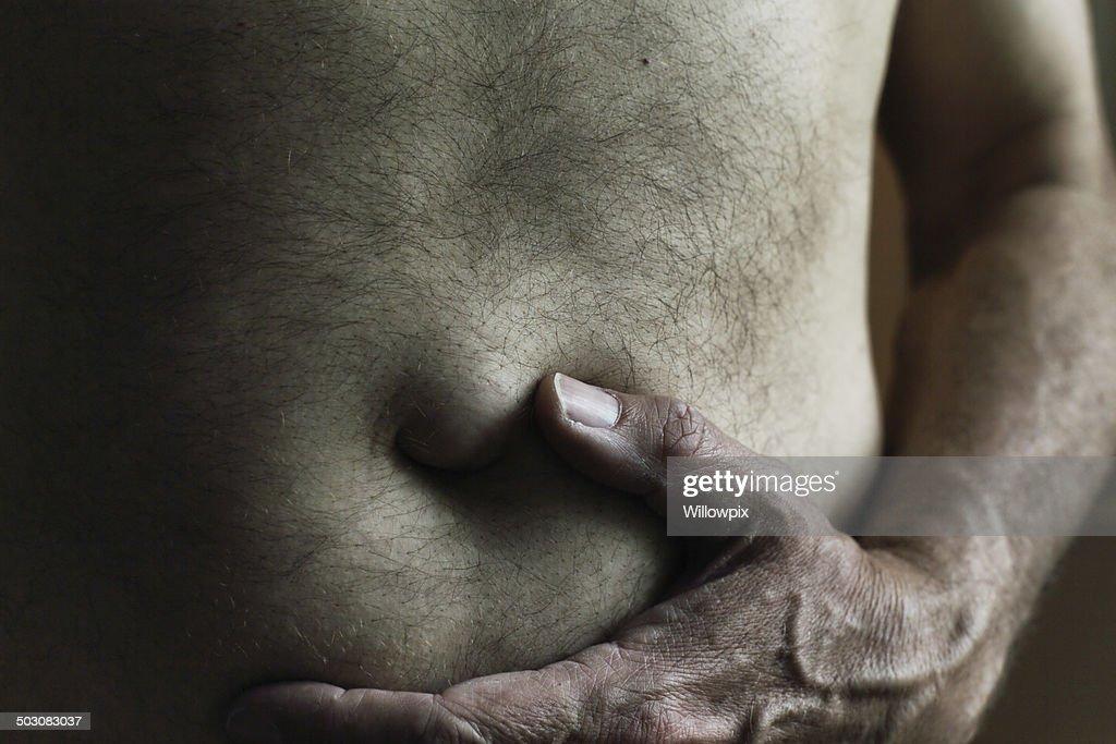 Photos of adult umbilical hernias